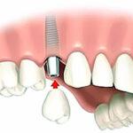 Capsula dente: quando si utilizza?