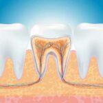 Endodonzia: cos'è e come funziona.