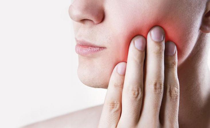 Ascesso dentale cause e sintomi.
