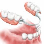 Protesi dentarie: cosa sono?