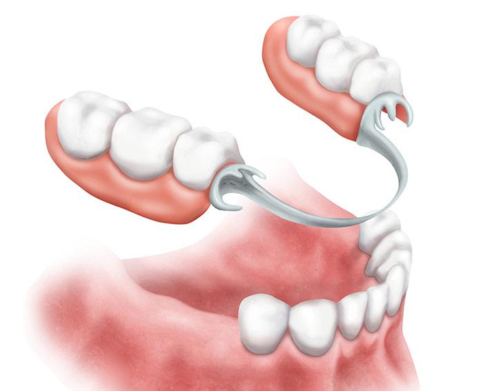 Bocca con protesi dentaria mobile