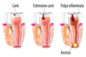 Processo di infiammazione polpa dentale