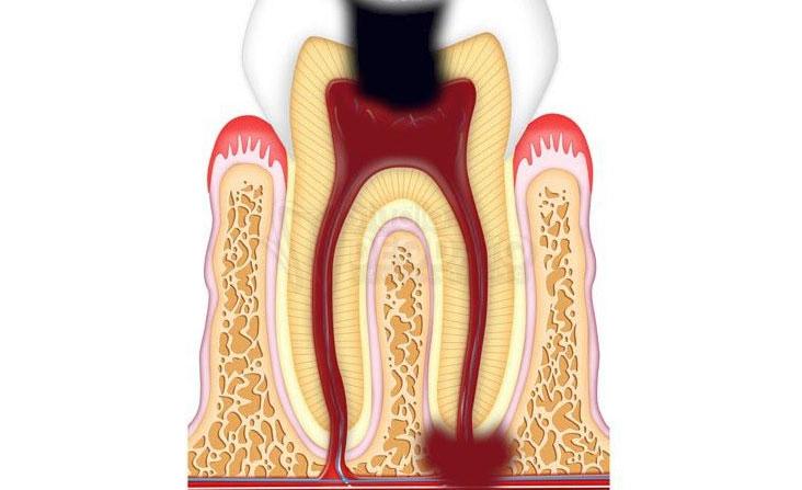 Dente con granuloma