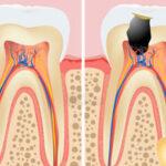 Denti cariati: quali sono le cause?