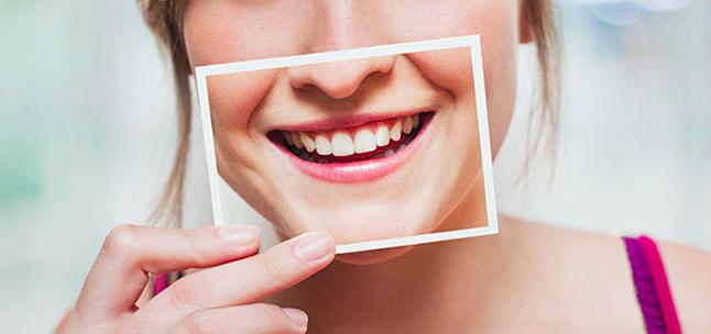 Sorriso perfetto, scopriamo i nostri denti