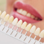Faccette Dentali: cosa sono?