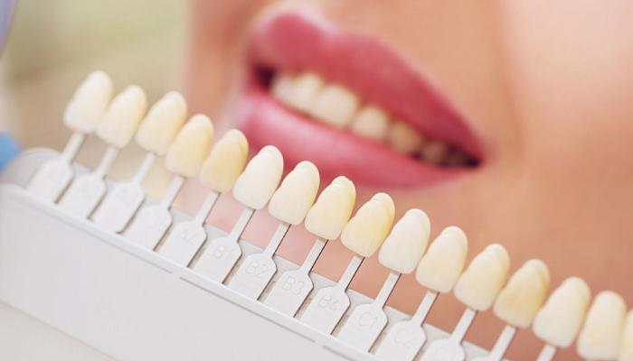 Faccette Dentali cosa sono