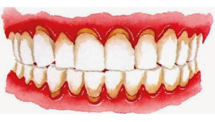 Denti con gengive infiammate