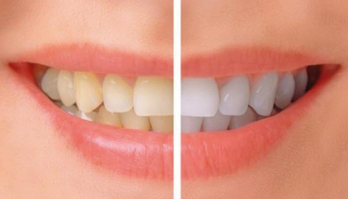 Sorriso denti curati e bianchi