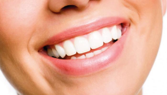 sorriso denti bianchi