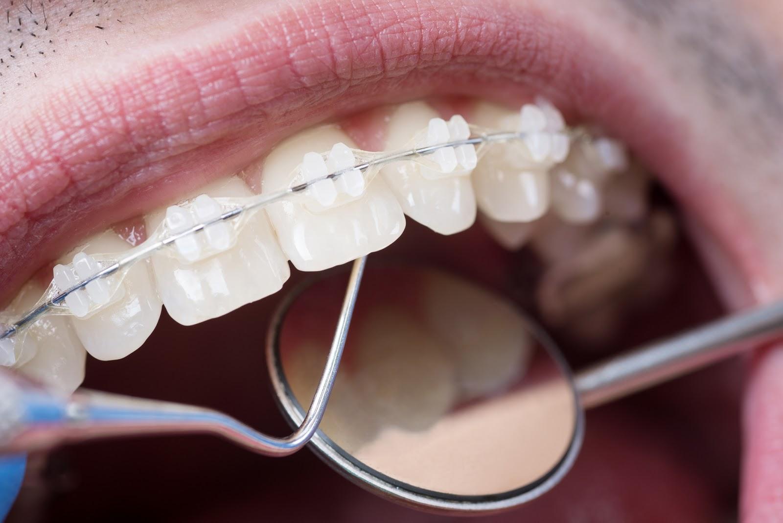 Prezzo apparecchio dentale fisso