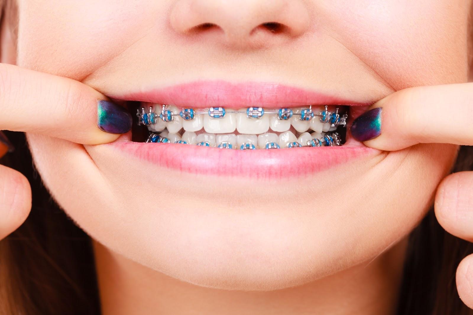 Sorriso con apparecchio dentale fisso
