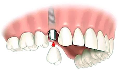Corona dente