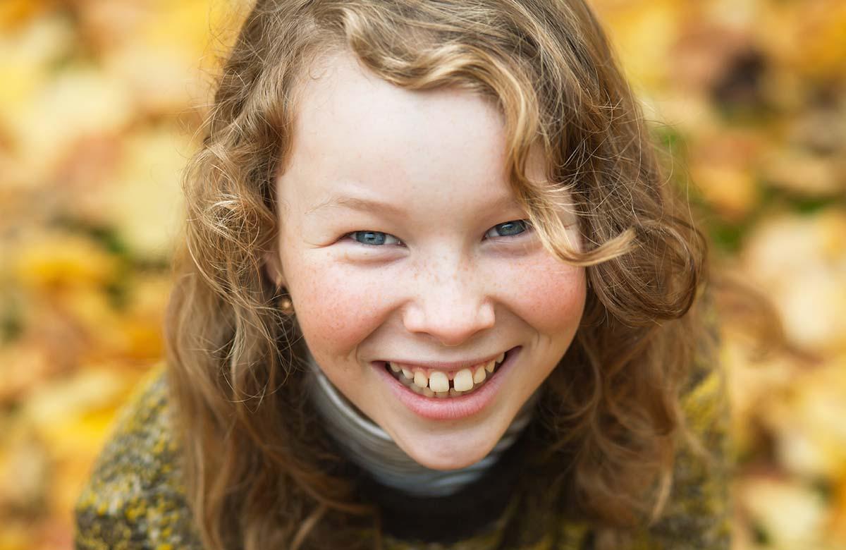 denti gialli bambini rimedi