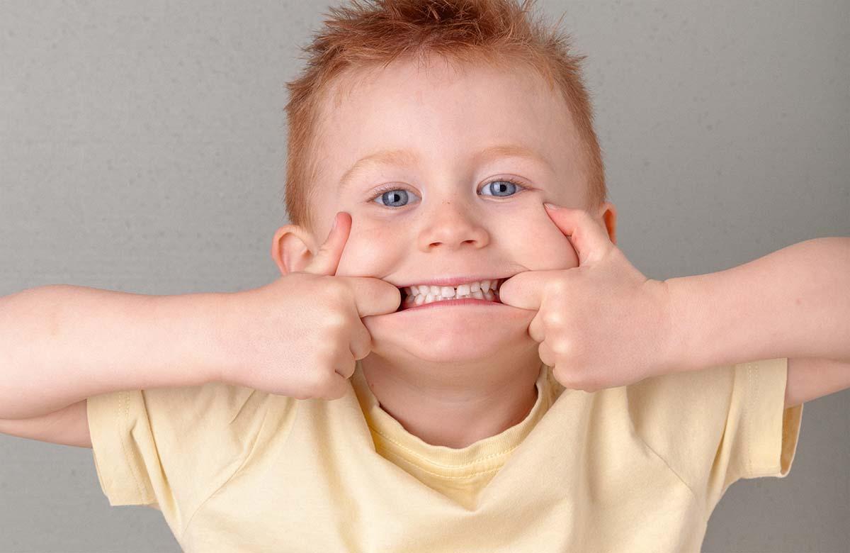 denti gialli bambini