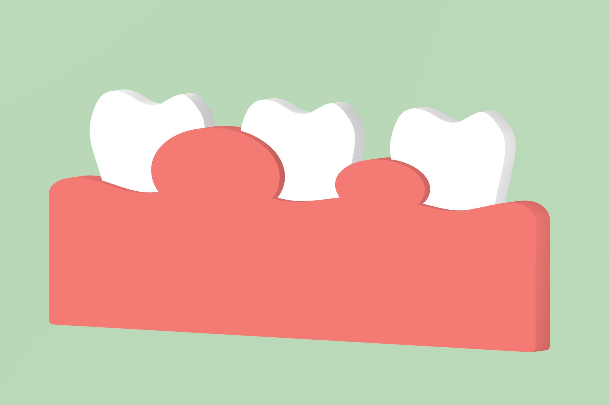 granuloma dentale sintomi