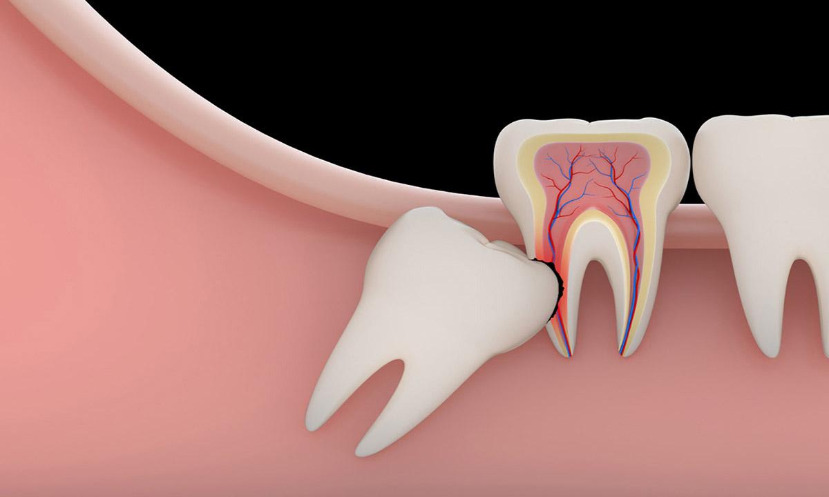 inclusione dentale