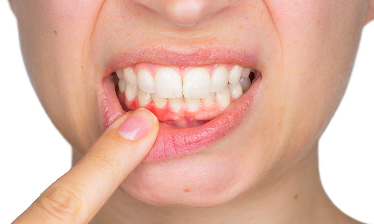 occlusione dentale gengive