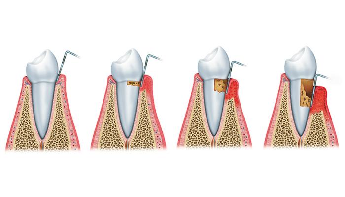 parodontite sintormi