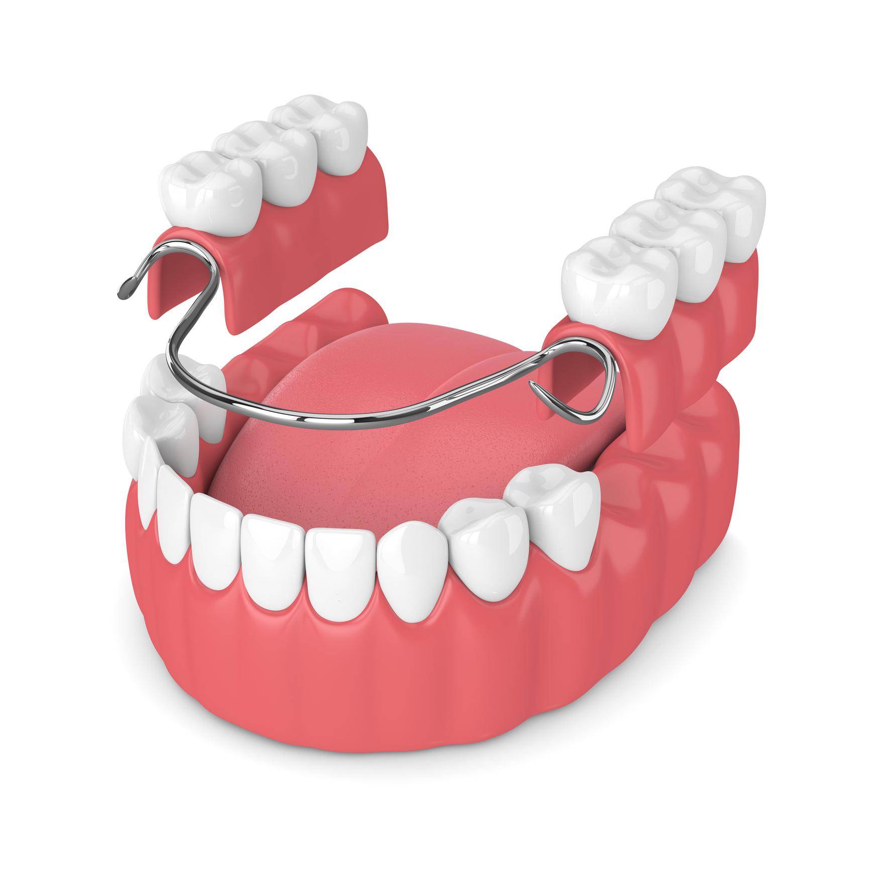 Protesi dentale parziale