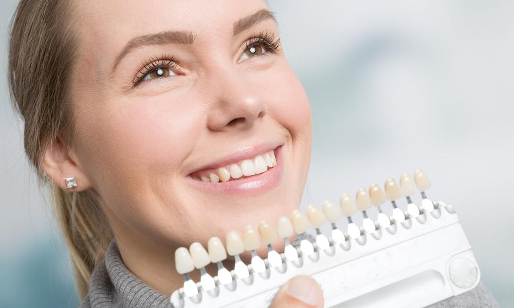 A cosa servono le faccette dentali