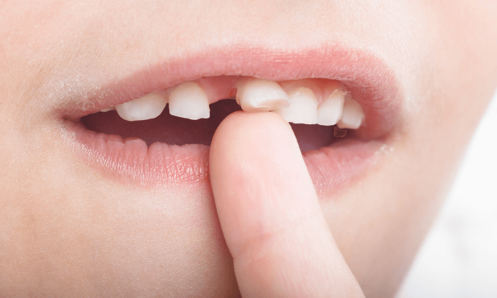 Quando togliere i denti da latte