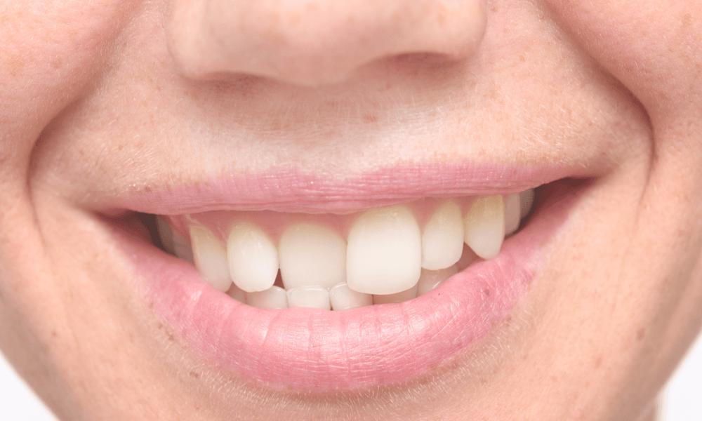 Denti storti conseguenze e rimedi