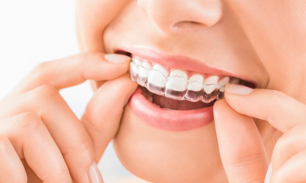 Apparecchio dentale trasparente: fisso e mobile